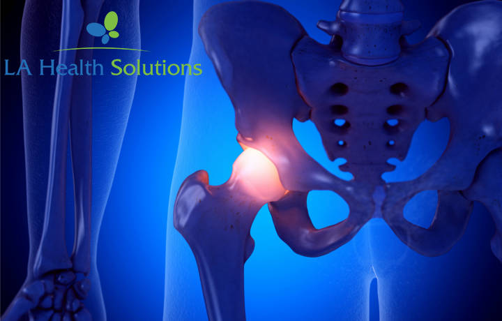 Sciatica | LA Health Solutions